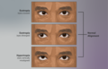 Depiction of a person suffering from Strabismus or crossed-eyes.png
