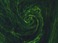 Eye of an algal storm ESA346697.png