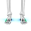 Fifth metatarsal bone01.png