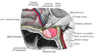 Third ventricle - The hypothalmic portion of the third ventricle (upper right), and surrounding structures