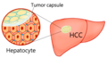 Hepatocellular carcinoma (HCC) often possesses a fibrous capsule with a clear-cut margin rather than an infiltrating border.png