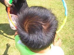 Menschliche doppelte Haarwirbel.JPG
