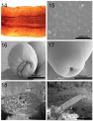 Parasite170122 Figs 14-19 Cavisoma magnum (Acanthocephala).png
