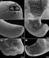Parasite180070-fig4 Rasheedia heptacanthi (Nematoda, Physalopteridae).png