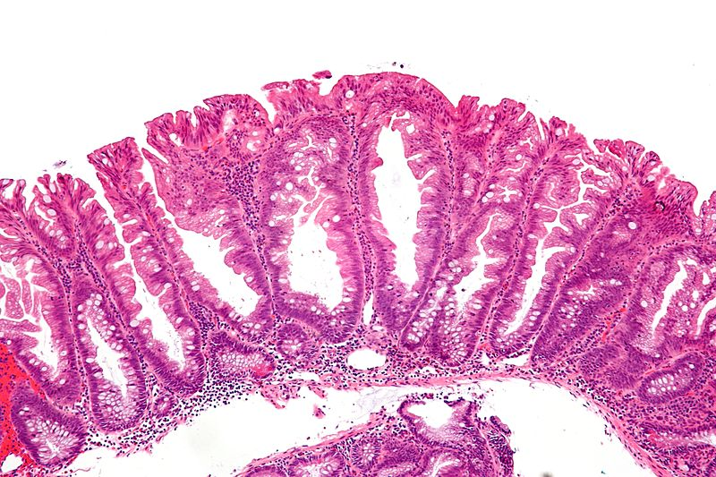 File:Sessile serrated adenoma 2 intermed mag.jpg