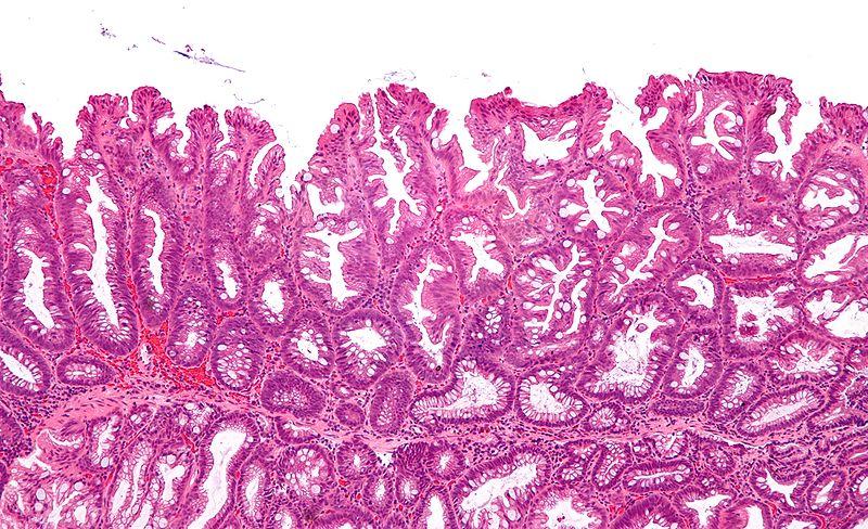 File:Sessile serrated adenoma 3 intermed mag.jpg