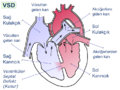 Ventricular septal defect-tr.png