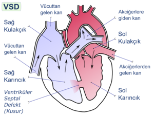 Ventricular septal defect (VSD) is a defect in...