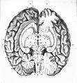 """Anatomie et physiologie..."" F.J. Gall & J.C. Spurheim, 1810 Wellcome L0020419.jpg"