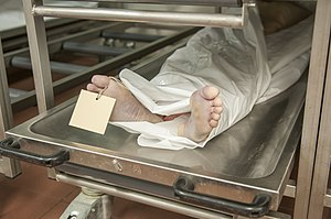 Morgue - A close-up view of a dead body in the morgue in Charité.