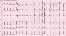 elettrocardiogramma a 12 derivazioni con fibrillazione atriale. Si notano le onde f e alcuni complessi ventricolari condotti con aberranza a blocco di branca destra