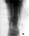 A fracture of the tibia and fibula of Major William Scott-Mo Wellcome L0026318.jpg
