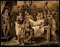 A surgeon holding up a stone after performing a lithotomy on Wellcome V0016771.jpg