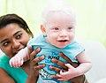 Albino baby by Felipe Fernandes 08.jpg