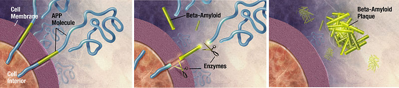 Image:Amyloid-plaque formation-big.jpg