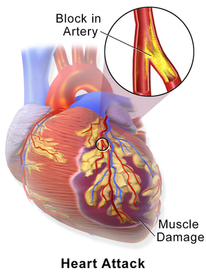treatment of coronary heart disease
