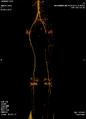 CT AAA i KS nogu.PNG