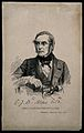 "Charles James Berridge Aldis. Wood engraving by ""W H A"" (?) Wellcome V0000102.jpg"