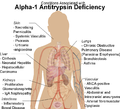 Conditions associated with Alpha-1 Antitrypsin Deficiency.png