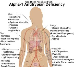alfa 1 antitrypsin