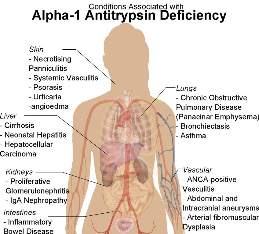 Alpha-1 disorder