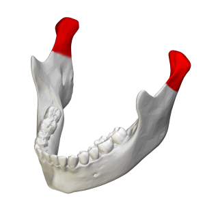 Condyloid process - Mandible. Condyloid processes are shown in red.
