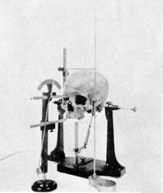 Skull and craniometric measurement apparatus, from 1902.