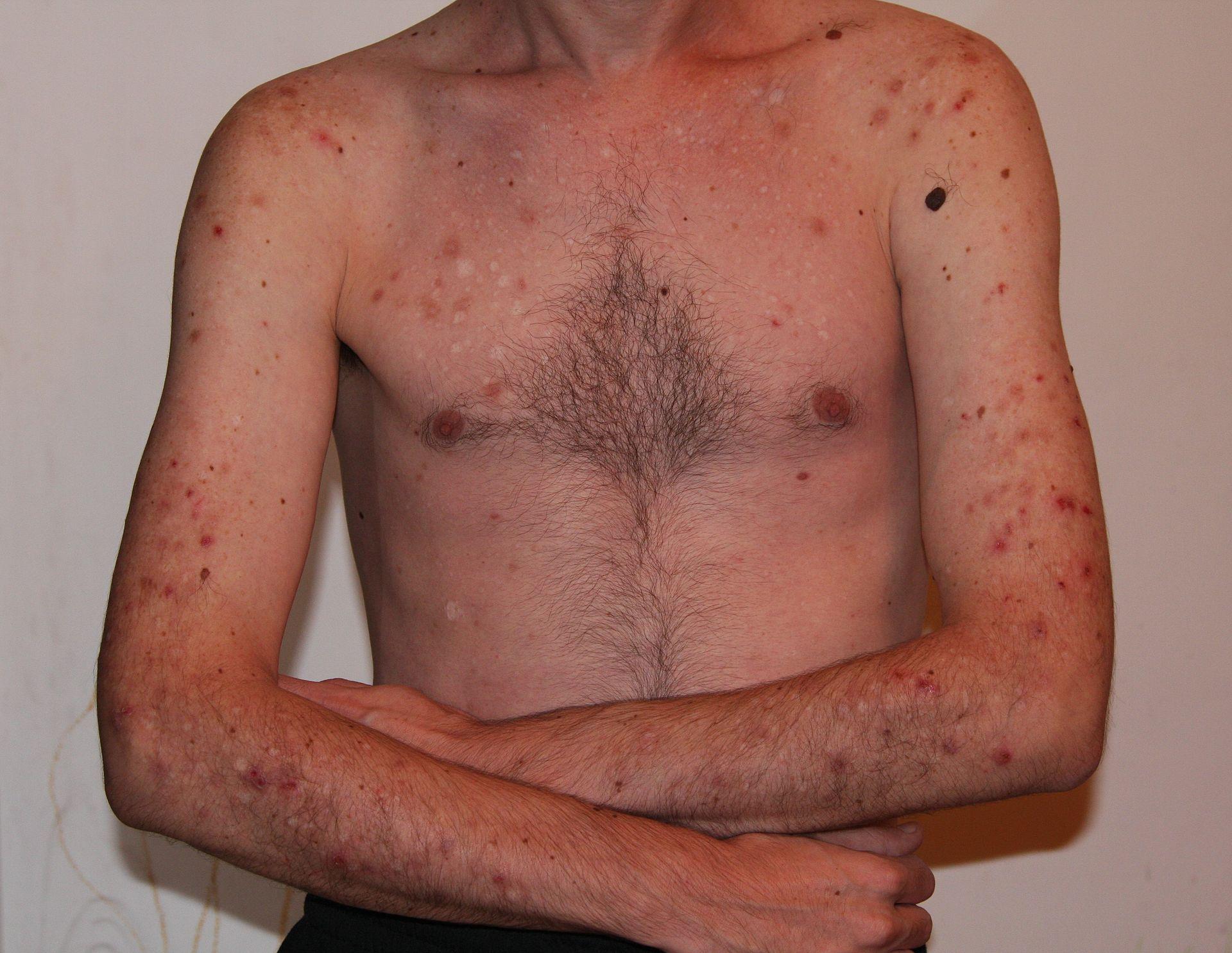 Acne excoriee, de behandeling, verwijdering en meer