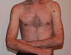 hål i huden efter pormask
