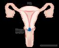 Diagram-showing-stage-1B1-cervical-cancer.png