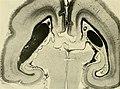 Die Entwickelung des menschlichen Gehirns - während der ersten Monate - Untersuchungsergebnisse (1904) (20724825610).jpg