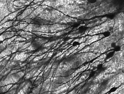 Golgi-stained neurons in human hippocampal tissue.
