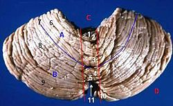 Human cerebellum posterior view description.JPG