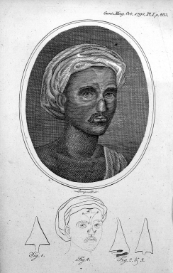 Indian method of nose reconstruction, illustrated in the Gentleman's Magazine, 1794