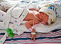 Mcmaster NICU infant 6978.jpg