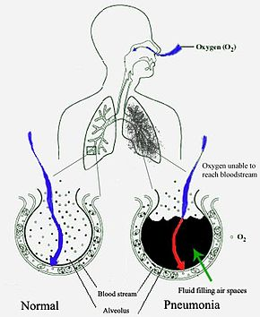 A schematic diagram of the human lungs with an empty circle on the left representing a normal alveola and one on the right showing an alveola full of fluid as in pneumonia