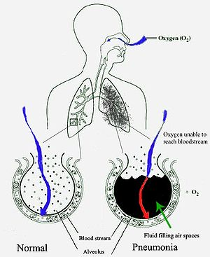 Pneumonia fills the lung's alveoli with fluid,...