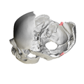 Occipital bone Lateral angle10.png