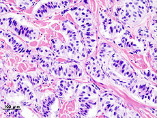 Pancreatic insulinoma (2).JPG
