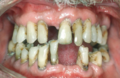 Periodontal Disease.png
