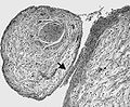 Plexiform neurofibroma WHO grade I.jpg