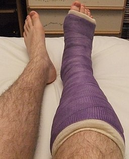 Purple short leg cast