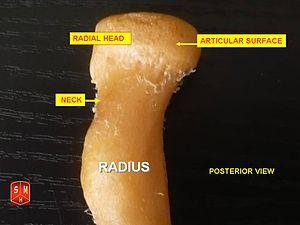 Radial tuberosity - Image: Radius 2