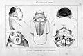 Saint-Hilaire; Histoire generale et particuliere... Wellcome L0023729.jpg