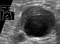 Ultrasonography of abdominal aortic aneurysm with mural thrombus.jpg