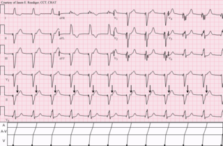 Pacemaker syndrome disease that represents the clinical consequences of suboptimal atrioventricular (AV) synchrony or AV dyssynchrony, regardless of the pacing mode, after pacemaker implantation
