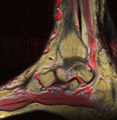 Varices 144817 rgbcb.png