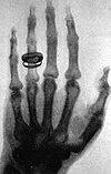 תצלום רנטגן שיצר וילהלם רנטגן