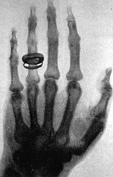 Röntgen'i gösteri nesnesi olarak kullanan Albert von Kölliker'in elinin röntgeni