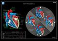 07 Hegasy Herzzyklus Wiki DE CCBYSA.png